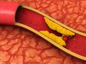 colesterol-placa